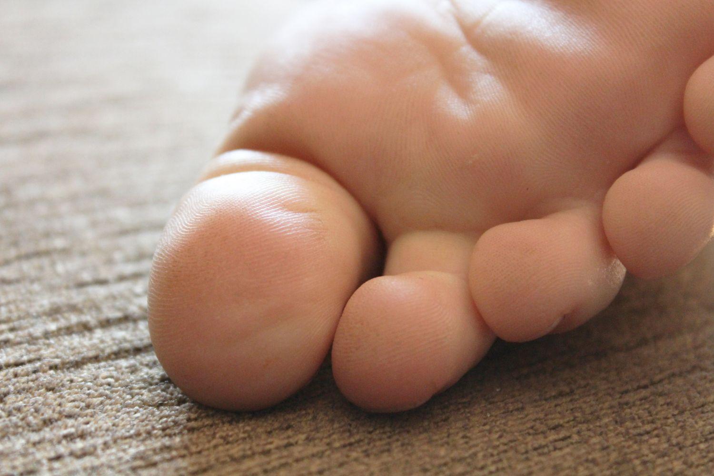 Besonders an den Füßen bilden sich bei Kindern gern Warzen